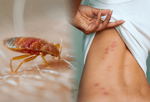 Bed Bug Bite Pictures What Do Bed Bug Bites Look Like